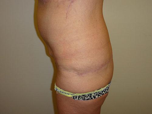 tummy tuck body lift patient 2362