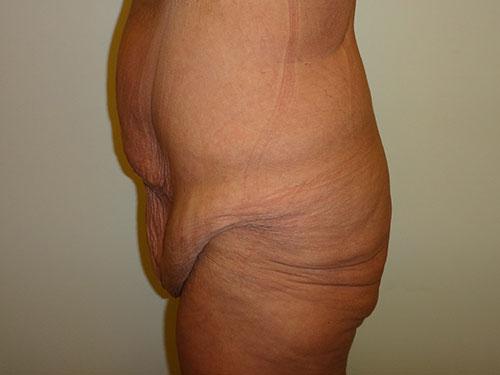 tummy tuck body lift patient 2363