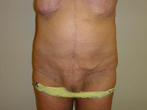 tummy tuck body lift patient 2364