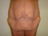 tummy tuck body lift patient 2365