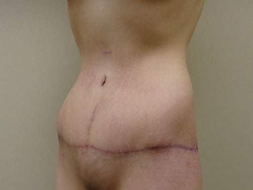 tummy tuck body lift patient 2368