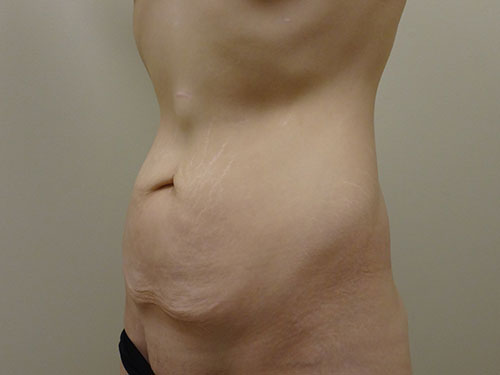 tummy tuck body lift patient 2369