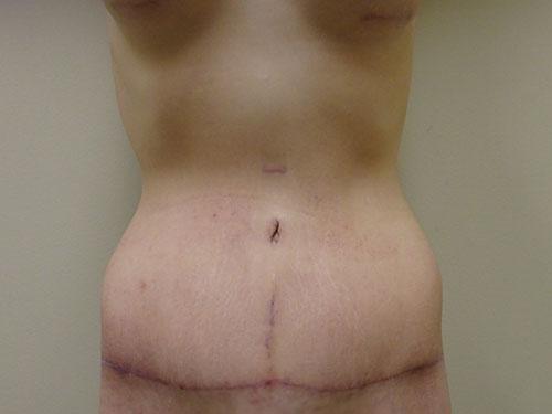 tummy tuck body lift patient 2370