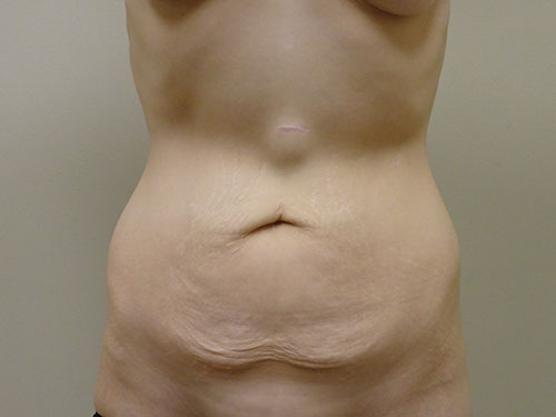 tummy tuck body lift patient 2371