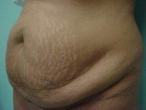 tummy tuck body lift patient 2377