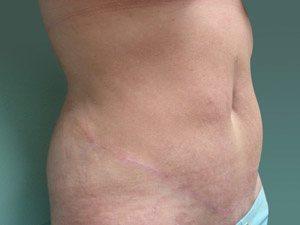 tummy tuck body lift patient 2378