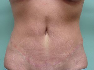 tummy tuck body lift patient 2380