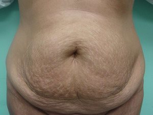 tummy tuck body lift patient 2381