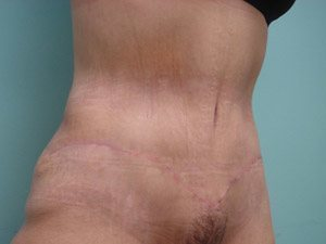tummy tuck body lift patient 2386
