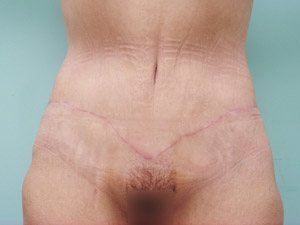 tummy tuck body lift patient 2388