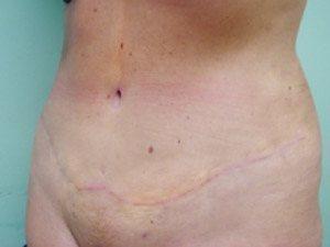 tummy tuck body lift patient 2392
