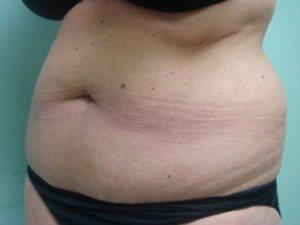 tummy tuck body lift patient 2393