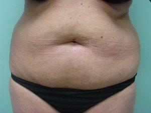 tummy tuck body lift patient 2395