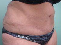tummy tuck body lift patient 2399