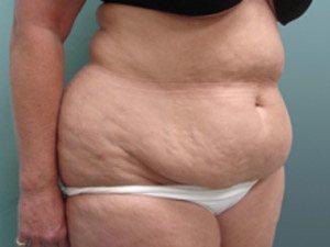 tummy tuck body lift patient 2400