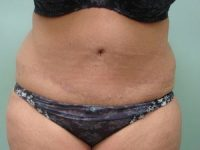 tummy tuck body lift patient 2401