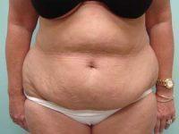tummy tuck body lift patient 2402