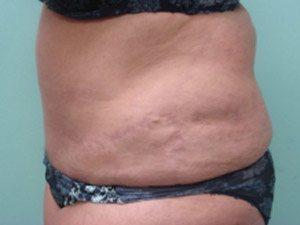 tummy tuck body lift patient 2403