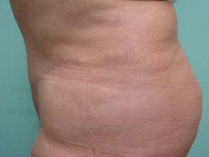tummy tuck body lift patient 2405