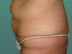 tummy tuck body lift patient 2406