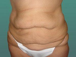 tummy tuck body lift patient 2410
