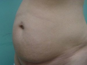 tummy tuck body lift patient 2412