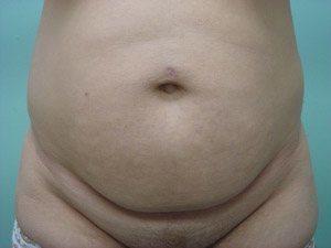 tummy tuck body lift patient 2416