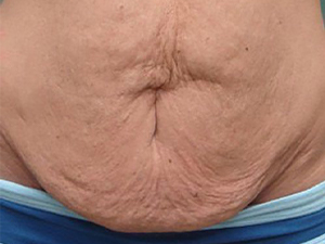 tummy tuck body lift patient 2776