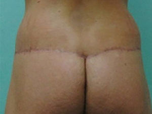 tummy tuck body lift patient 2779