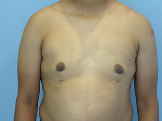 gynecomastia patient 2893