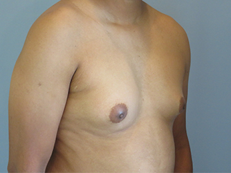 gynecomastia patient 2894