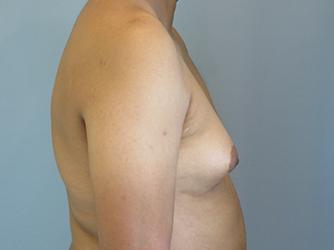 gynecomastia patient 2895