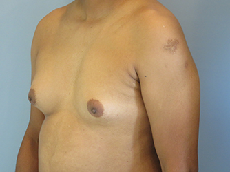 gynecomastia patient 2896