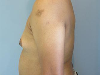 gynecomastia patient 2897