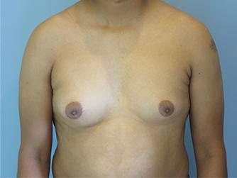 gynecomastia patient 2898