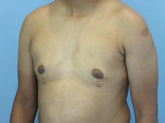 gynecomastia patient 2900