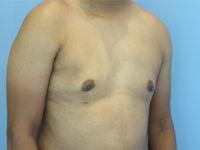 gynecomastia patient 2902