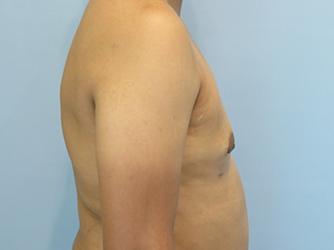 gynecomastia patient 2903