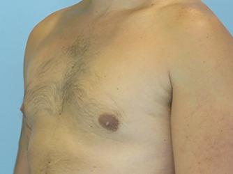 gynecomastia patient 2906
