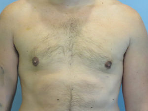 gynecomastia patient 2907