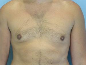 gynecomastia patient 2908
