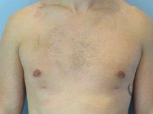gynecomastia patient 2928